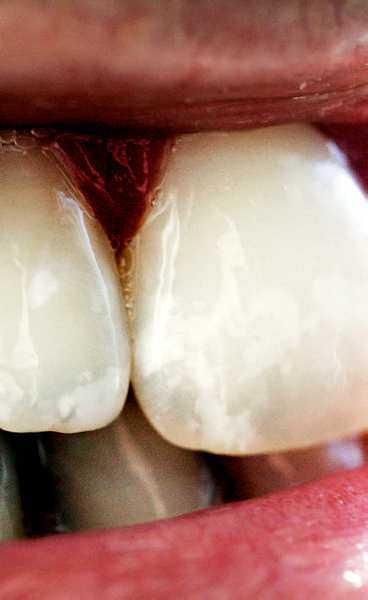 tandblekning vita fläckar