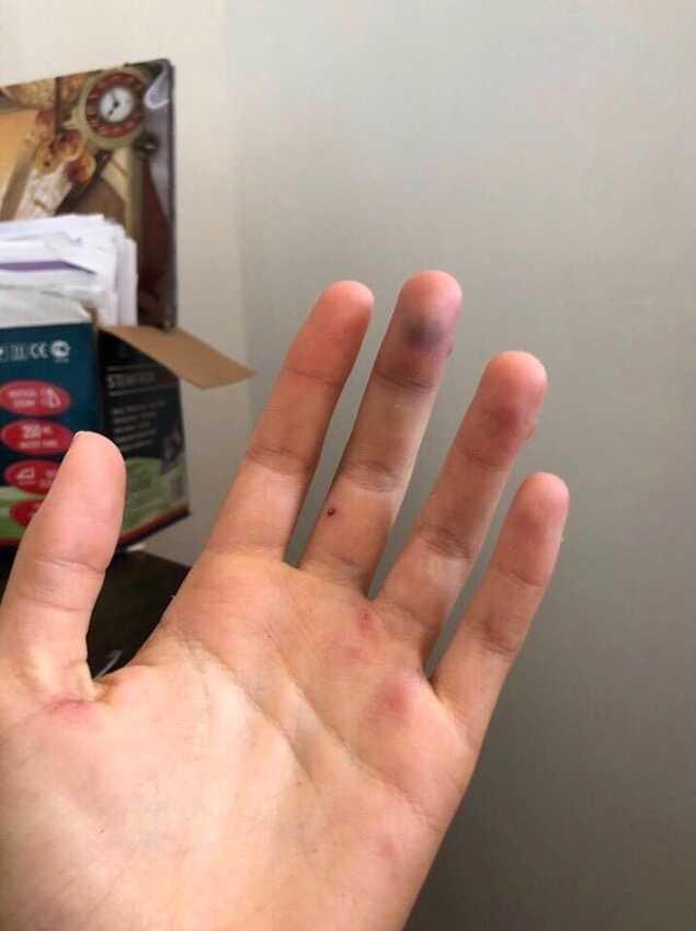 Tatjana fick också blåmärken på vänsterhanden efter misshandeln.