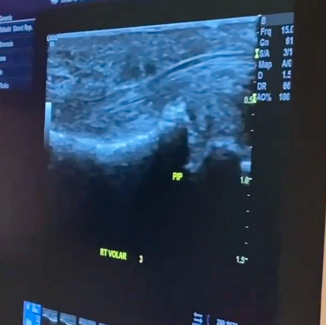 Neil Patrick Harris visar upp ultraljudet som visar den punkterade senan.